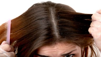 How-to-treat-dandruff