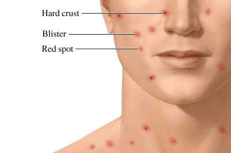 the causes and effects of the chicken pox disease Review the symptoms of chickenpox, a viral infection that is becoming less  the  rash also can cause lesions on mucous membranes in the eyes, mouth, and.