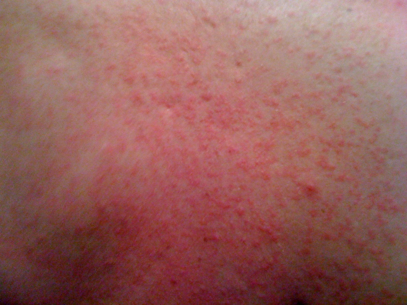 Fungal Rash on Buttocks - Buzzle