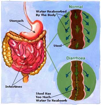 Diarrhoea Symptoms Causes And Home Remedies Saloni
