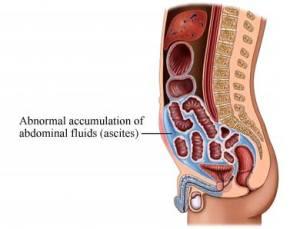 Ascites Causes