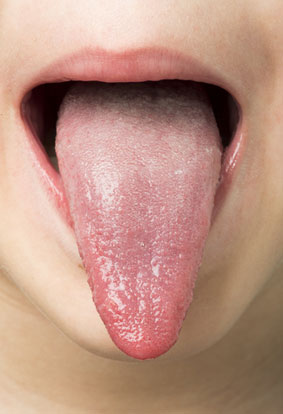 Natural Treatment For Oral Warts