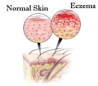 How To Cure Eczema Naturally