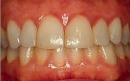 gingivitis symptoms