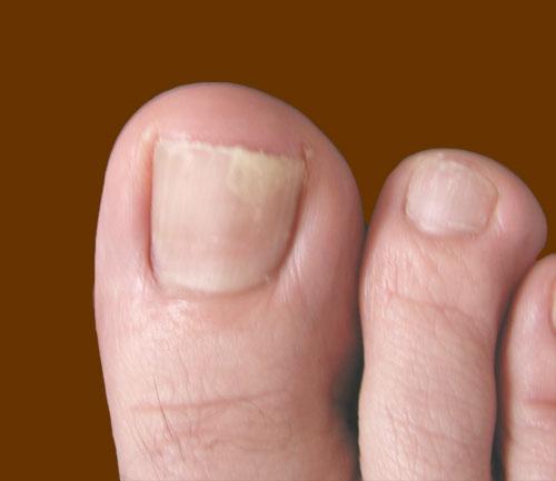Toe Nail Fungus – Symptoms, Causes and Home Remedies – Saloni Health ...