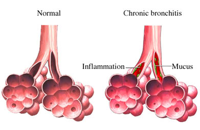 Natural Remedy Bronchitis Infection