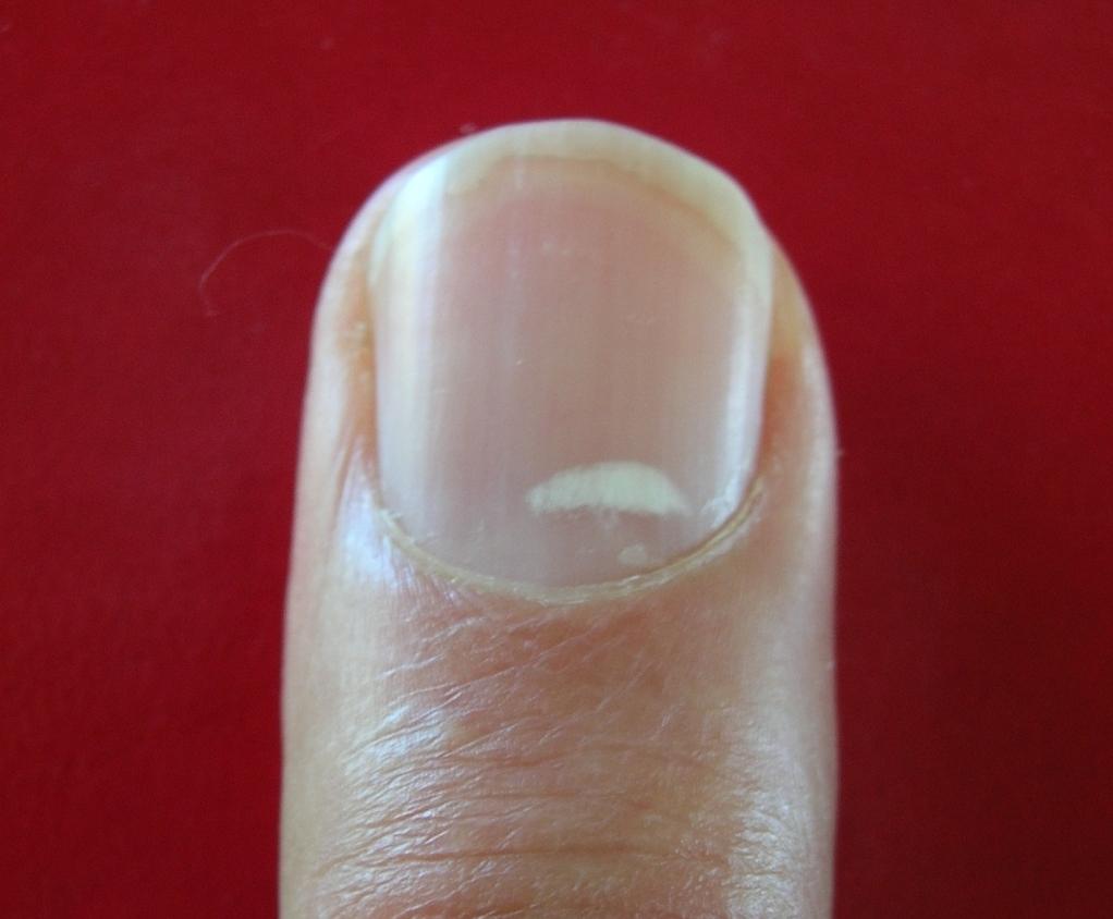 Nail Polish Causes White Spots - CrossfitHPU