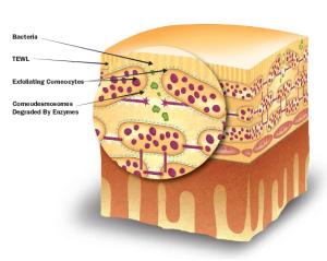 Losing Skin Moisture