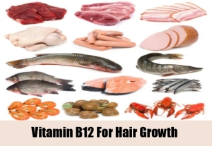 Vitamin B 12