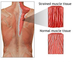 what causes stiff muscles in the morning