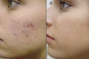 The Treatment of Acne Blemishes