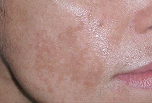 Natural-treatment-for-melasma-or-cloth (1)