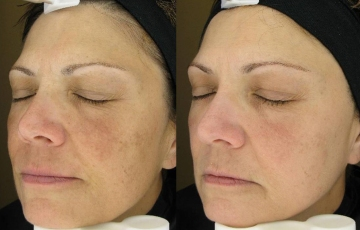 Natural-treatment-for-melasma-or-cloth