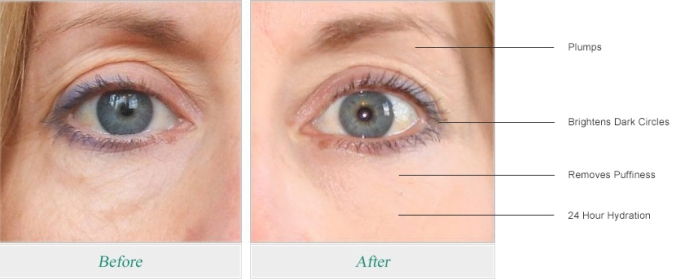 ageless_eyes_side_effects.jpg