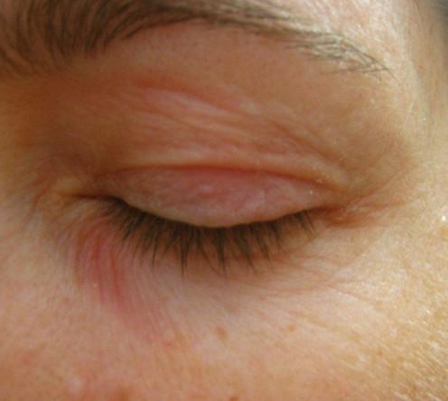 dry-skin-around-eyes.jpg