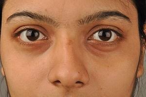 dry_skin_around_eyes_cure