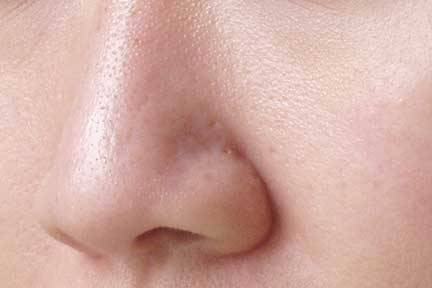 how-to-reduce-enlarged-pores_2_3841.jpg